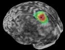 020618_dg_brain-rhythm_main-e1552320190621.jpg